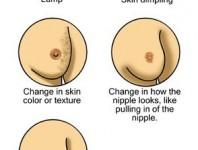 Los tipos de cáncer de mama más frecuentes que afectan al organismo