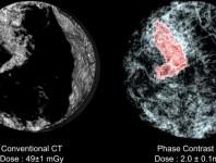 Nuevo método diagnostico de cáncer de mama en 3D