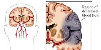 Tratamiento-y-tipos-de-apraxia