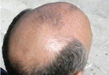 calvo-prostata