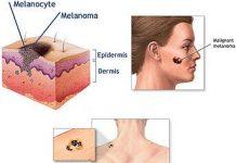 cancer_melanoma