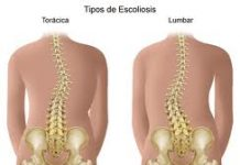 escoliosis-tipos
