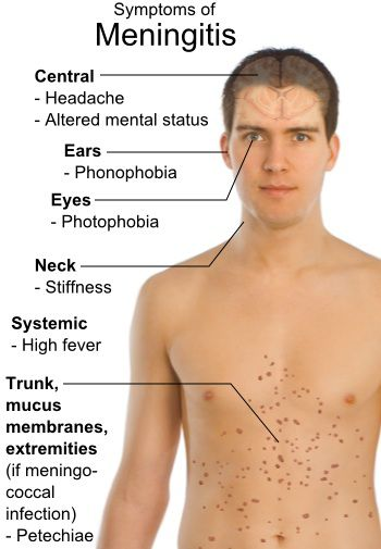 Como se presenta la meningitis en nuestro organismo